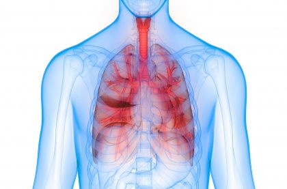 COPD Air Purifiers